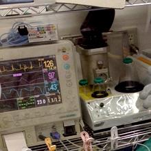 麻酔機と手術モニター